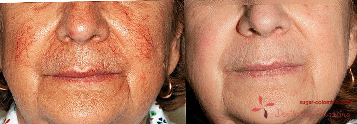 Kapilare na licu praska: uzroci rosacea, moderne i popularne metode liječenja