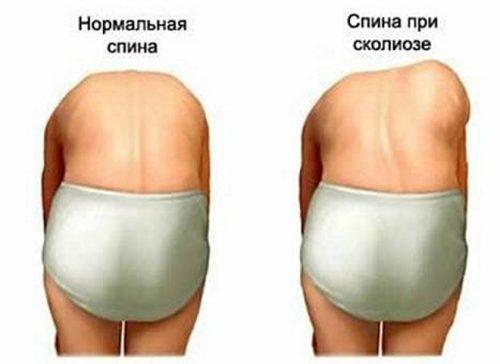 tablete od hipertenzije laktacije