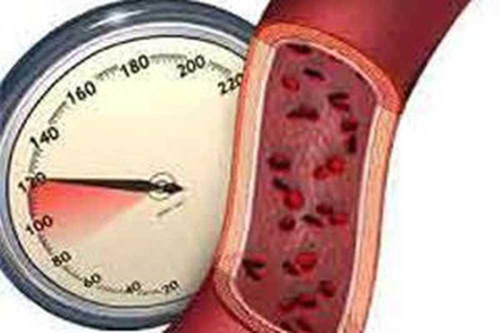 tanke krvi od hipertenzije