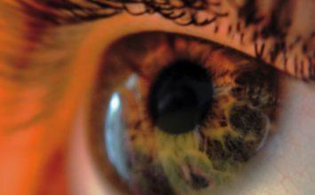 crvenilo očne hipertenzije