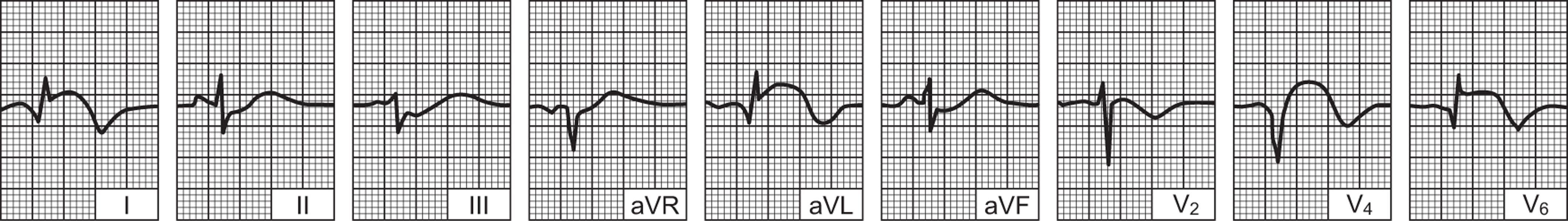 Srčani udar (infarkt miokarda) – uzroci, simptomi i liječenje