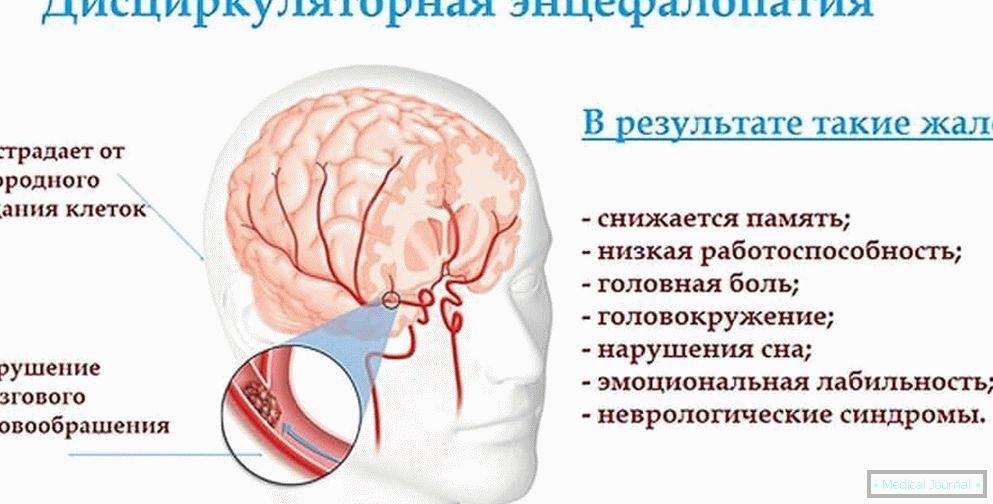 Lechnie hipertenzija
