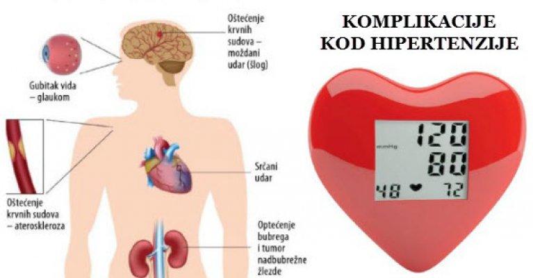 Hipertenzija i znojenje vode