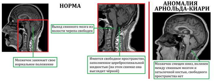 hipertenzija šetnje diabeton i hipertenzija