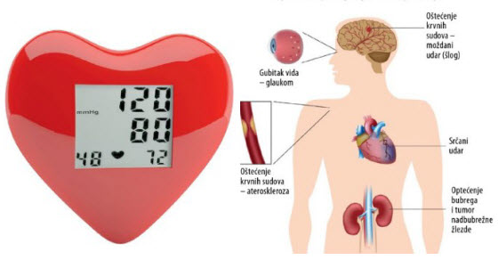 Uzroci hipertenzije u mladoj dobi kod muškaraca