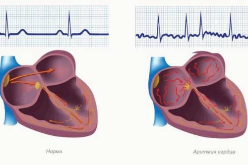 Aritmija srčanih bolesti, hipertenzija hipertenzija, hipotenzija hipotenzija