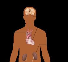 distonije, liječenje hipertenzije