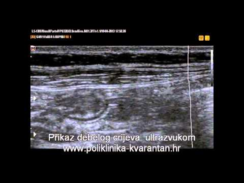 Osteohondroza duhovni uzroci