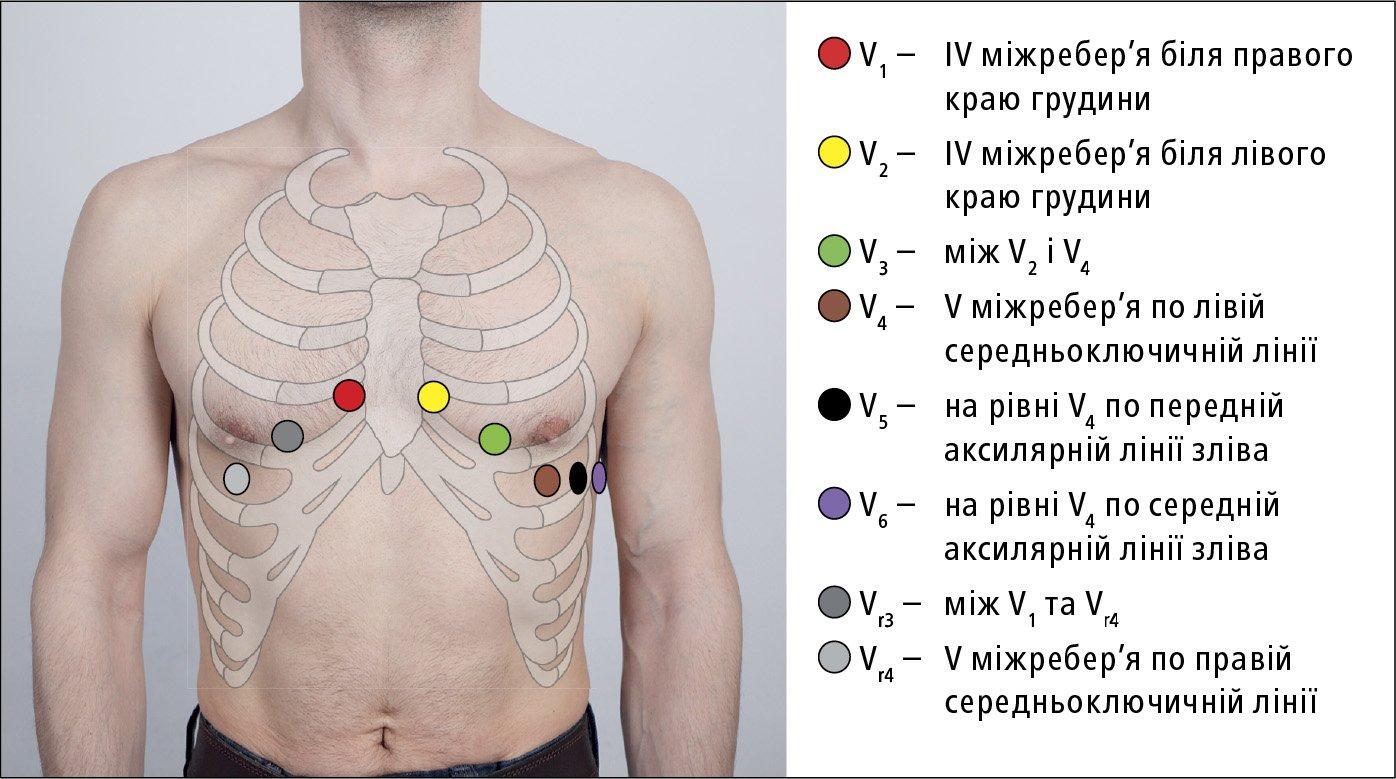 kardiogram hipertenzija