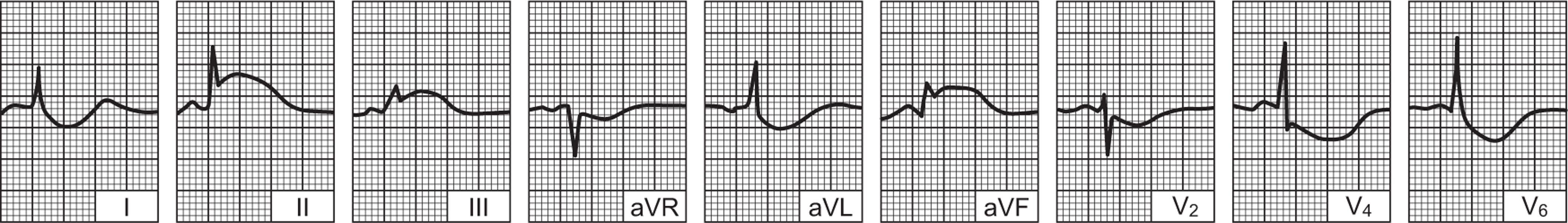 ekg pokazuje hipertenzija