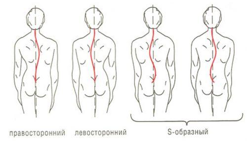 george f. lang hipertenzije skupina invalidnosti hipertenzija 3 stupnja rizika 4