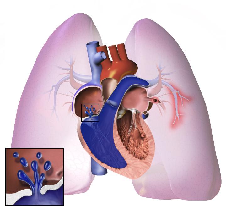 hipertenzija vježbanje proizvodi ovlaštena za hipertenziju