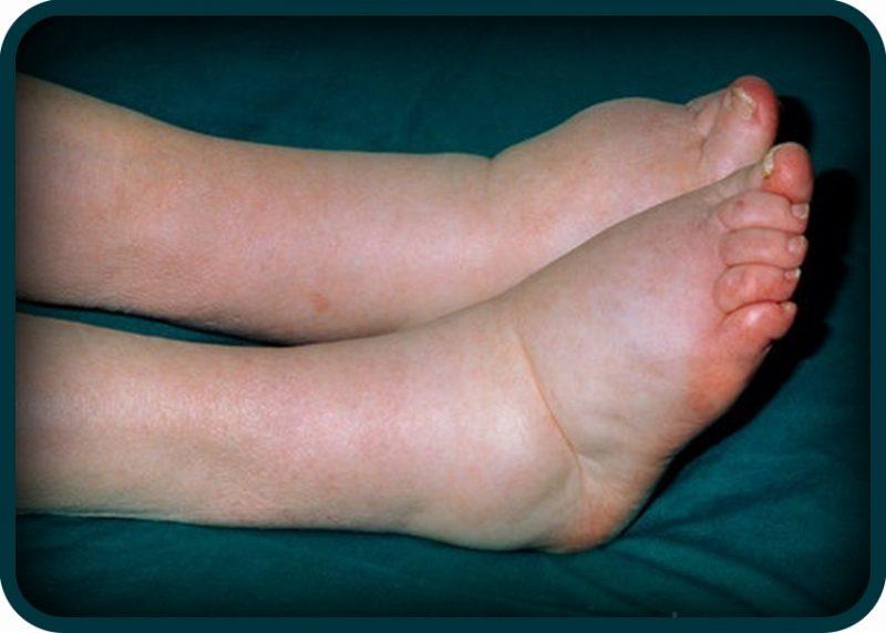 hipertenzija i oteklina u nogama nemir u srcu i kratkoća daha