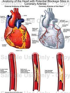 hipertenzija sindrom mišića