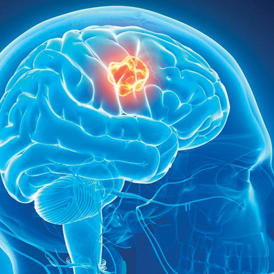 neurology hipertenzija