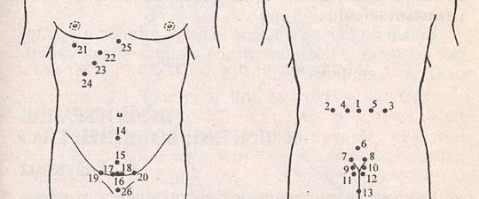 simptomi hipertenzije stupnja žlica rakije hipertenzija