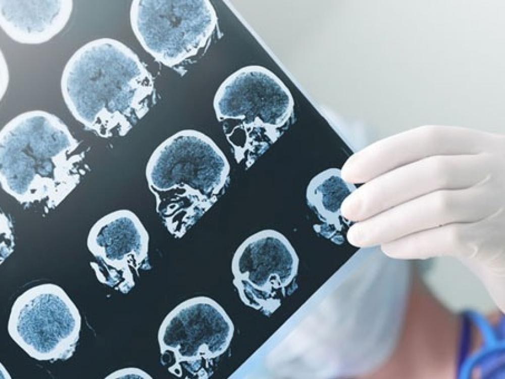 epilepsija, hipertenzija
