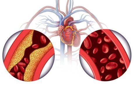 hipertenzija da