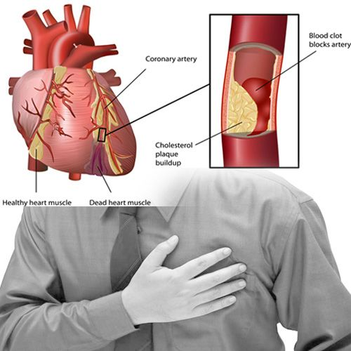 hipertenzija i aterosklerozu akupresure i hipertenzija