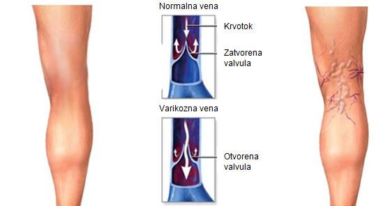 hipertenzija varikoziteti folija za liječenje hipertenzije