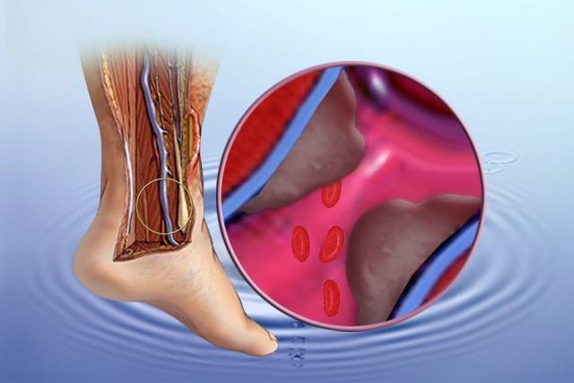 hipertenzija varikoziteti sophora za liječenje hipertenzije