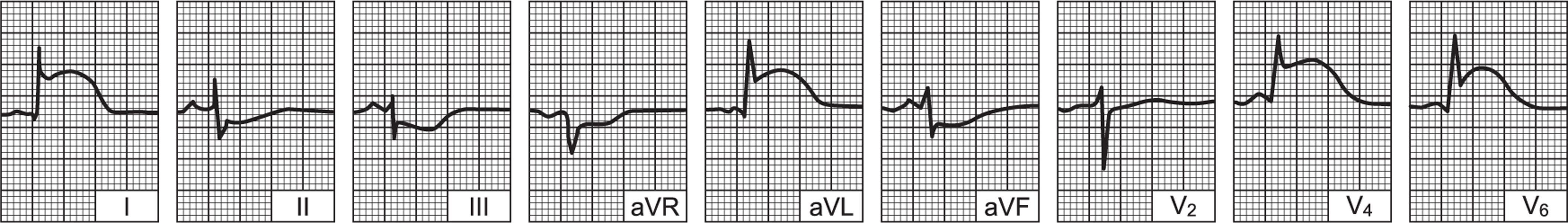 infarkt miokarda prognozom za život