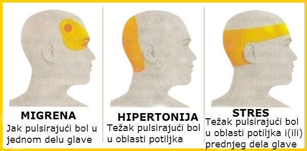hipertenzija u blacks