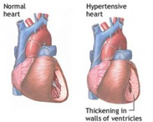 simptomi hipertenzije i hipotenzije