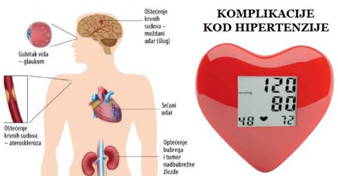 simptomi simptomi hipertenzije hipertenzija od faza klasifikaciji