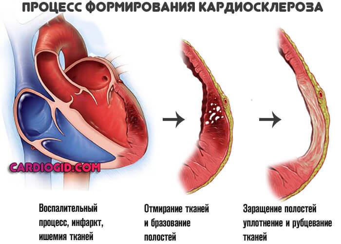 Pregled 13 popularnih lijekova za srce: njihove prednosti i mane