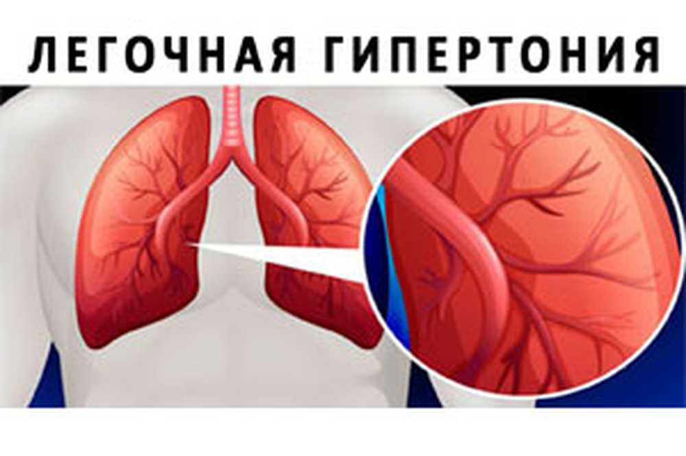 stupanj hipertenzija