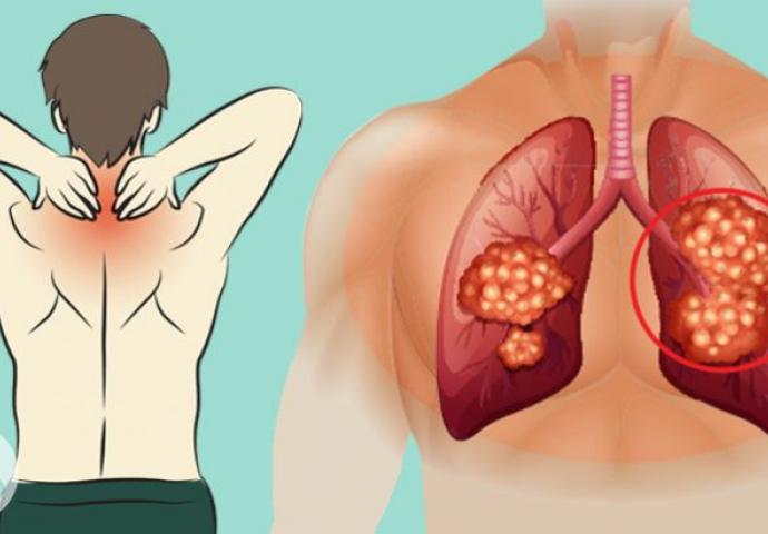 Nekoliko mjeseci prije srčanog udara - pojavljuju se ove stvari | 24sata