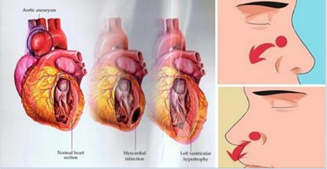 znakovi povišenog krvnog tlaka senzacija