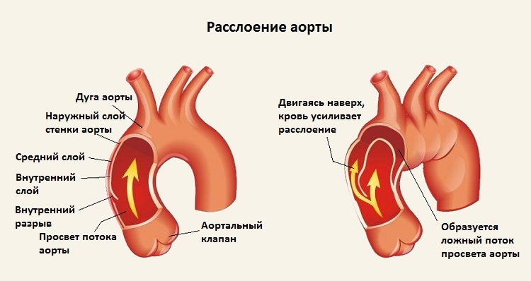 sprječavanje hipertenzije u osteochondrosis