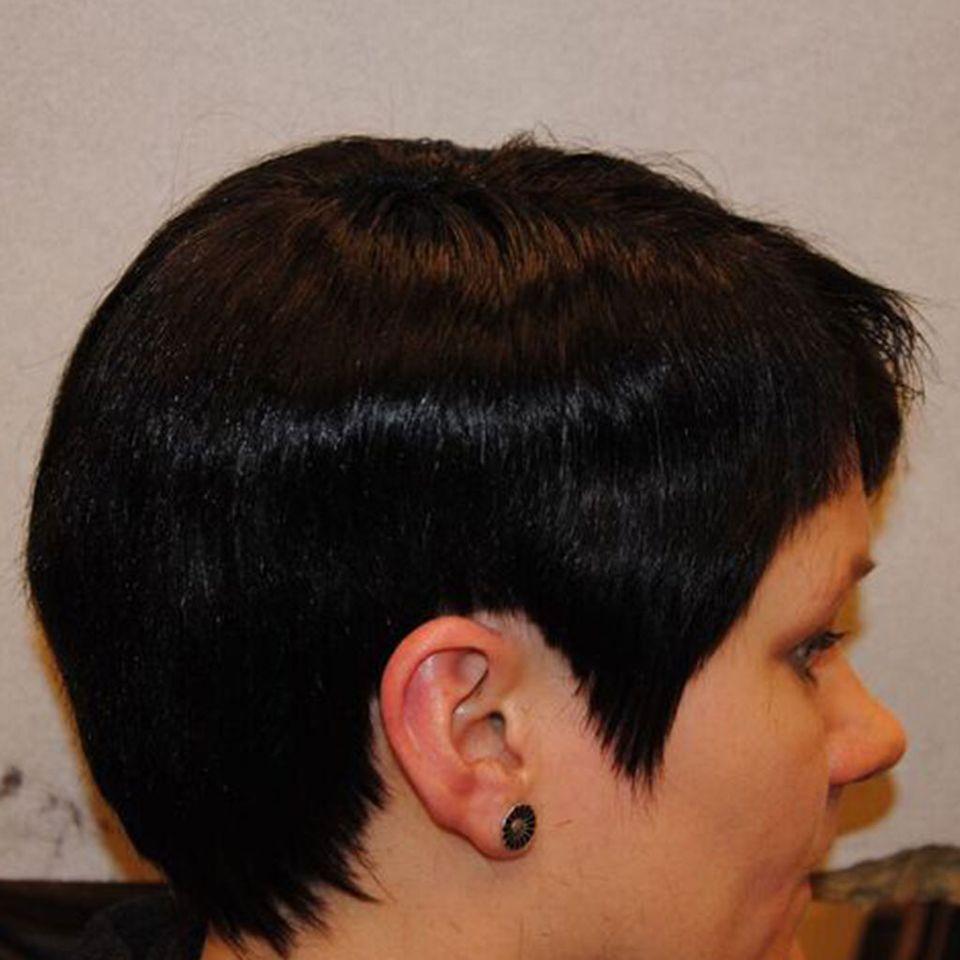 hipertenzije, alopecia