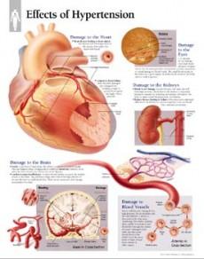kako se postupa. hipertenzija hipertenzija i postovi