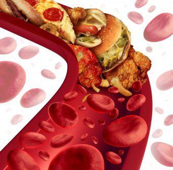 hipertenzija konzole pijavice hipertenzija naravno ne