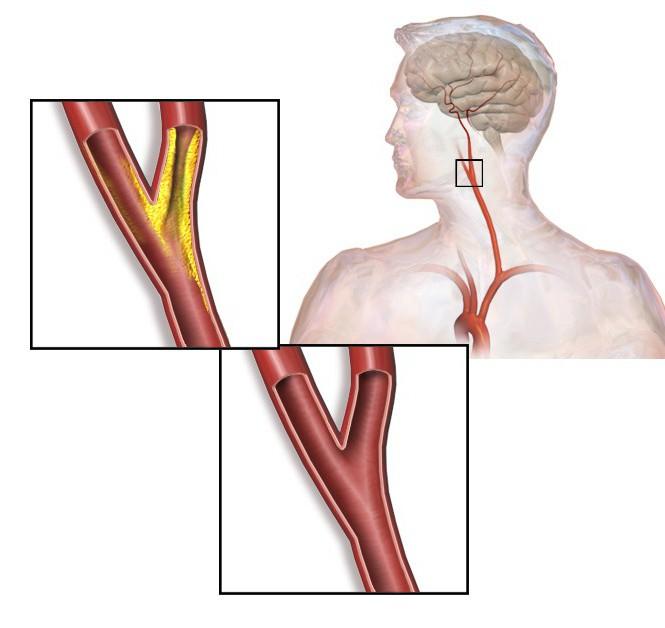 hipertenzija izaziva efekte simptomi liječenja klima za osobe s hipertenzijom