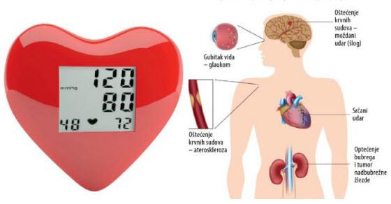 vježba bolesnika s koronarnom bolesti srca i hipertenzije
