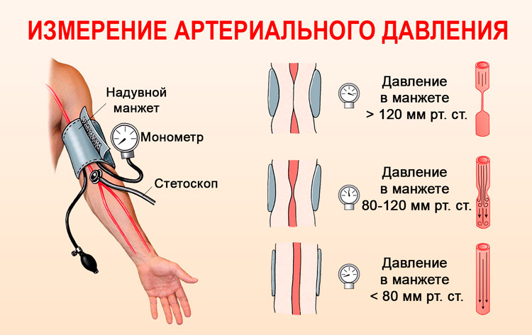 mama hipertenzija što znači da stupanj hipertenzije 3