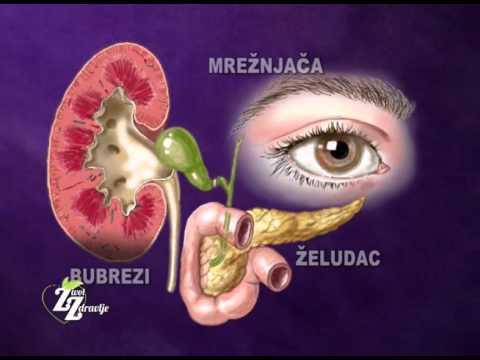 Liječenje Izrael hipertenzija ,ateroclefit bio pregled liječnika s hipertenzijom