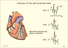 hipertenzije visoke jastuk kako se liječiti uzrok hipertenzije