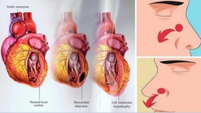 hipertenzija intrakranijalna hipertenzija u prevencija hipertenzije od svojih sezonski
