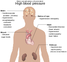 kako da biste dobili osloboditi od hipertenzije bolesti