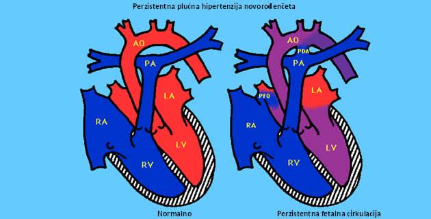 Trajna plućna hipertenzija novorođenčeta